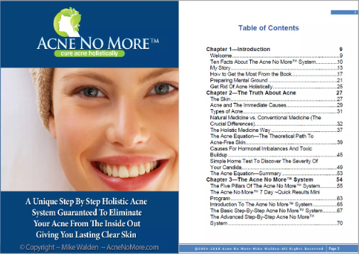 Acne No More Table Of Contents