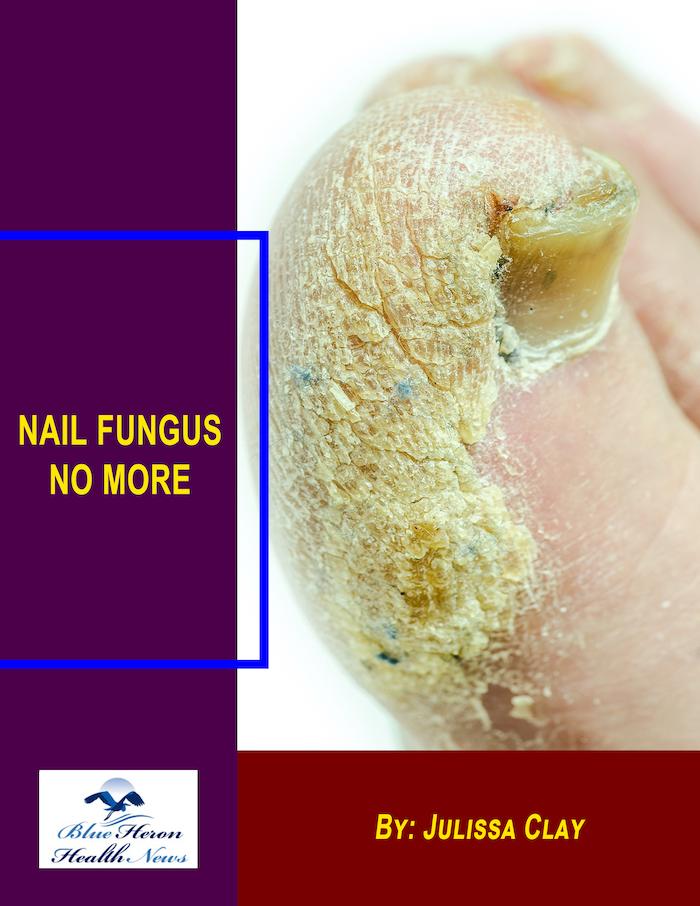 Nail Fungus No More Book